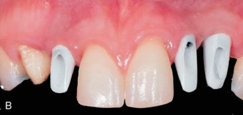 odontika emfiteumata 1
