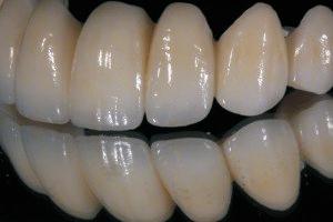odontika emfiteumata 2
