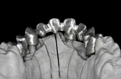 ο μεταλικος σκελετος  με κοπη  (milling) 2